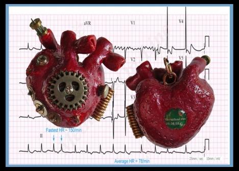 2017 EKG Heart